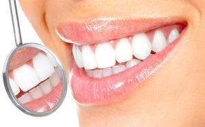 licówki na zębach