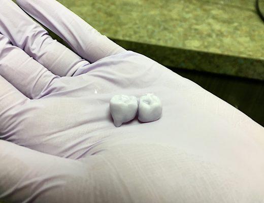 Utrata nawet jednego zęba może mieć poważne konsekwencje
